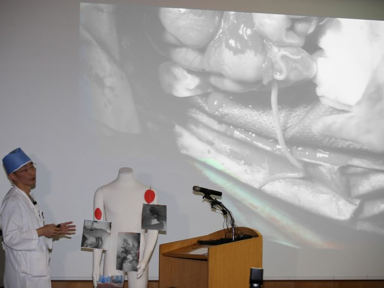 A surgeon Lee Cook-jong gives a briefing during a news conference at a hospital in Suwon South Korea