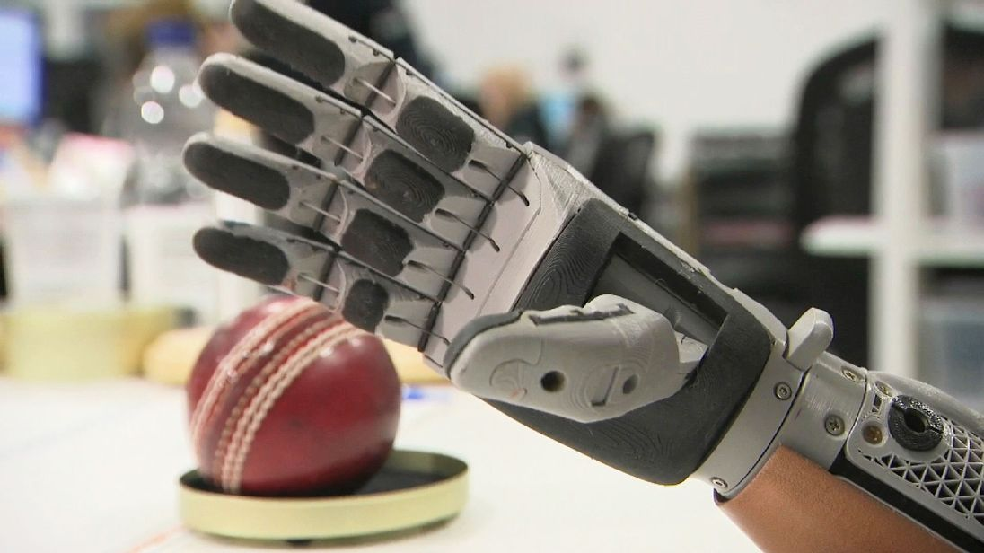 Cameron Millar to get new bionic hand