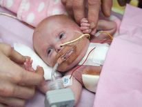 Vanellope Wilkins at three weeks old after undergoing several operations to enclose her heart