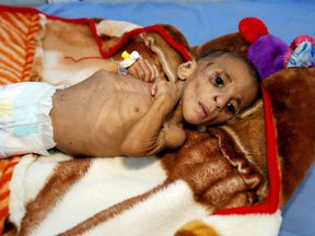 One-year-old Fatima Abdullah Hassan is one of thousands at a malnutrition treatment center in the port city of Hodeida, Yemen