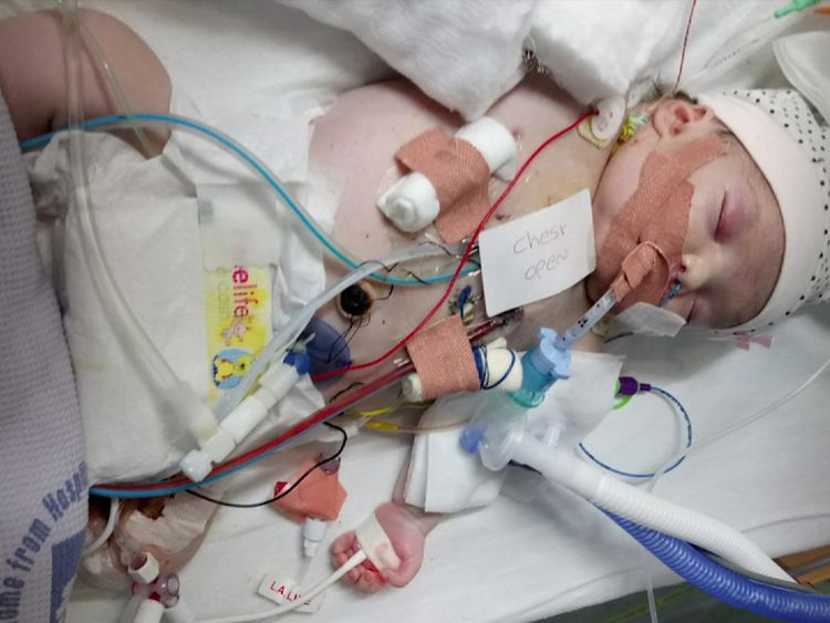 Amelia has had two major open heart surgeries in the 10 months she has been alive