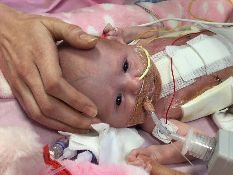 The newborn following her surgery