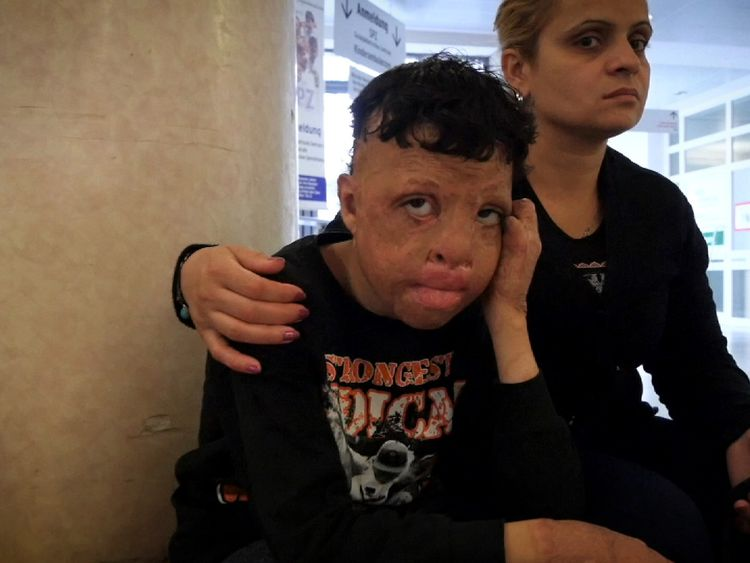 Syrian children who have been injured face a long road to recovery even after they have fled the country's civil war
