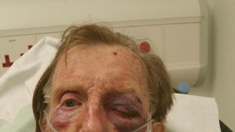 Arthur Gumbley was viciously beaten in his own home. Pic: Staffordshire Police