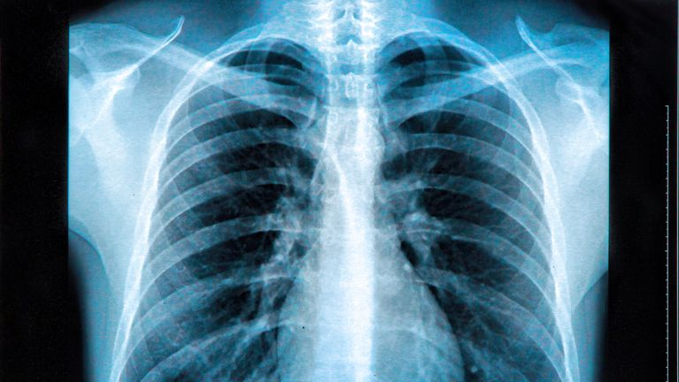 X-Ray image of the human chest