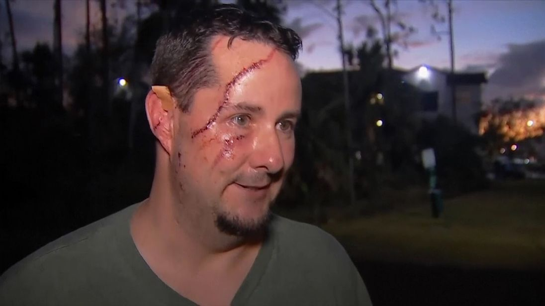 Andrew Meunier survived a bear attack. Pic: Wink News
