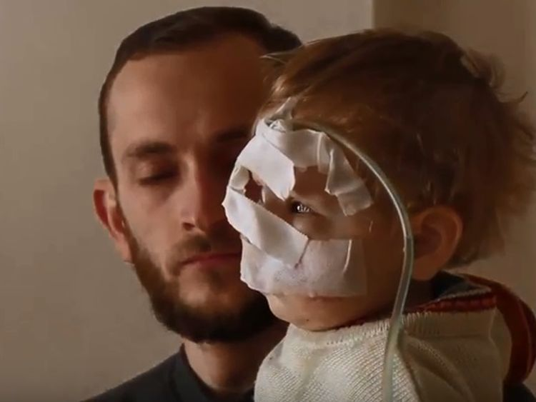 Qasem, who lost his mother and suffered disfigurement to his face in a bombardment in Ghouta last year