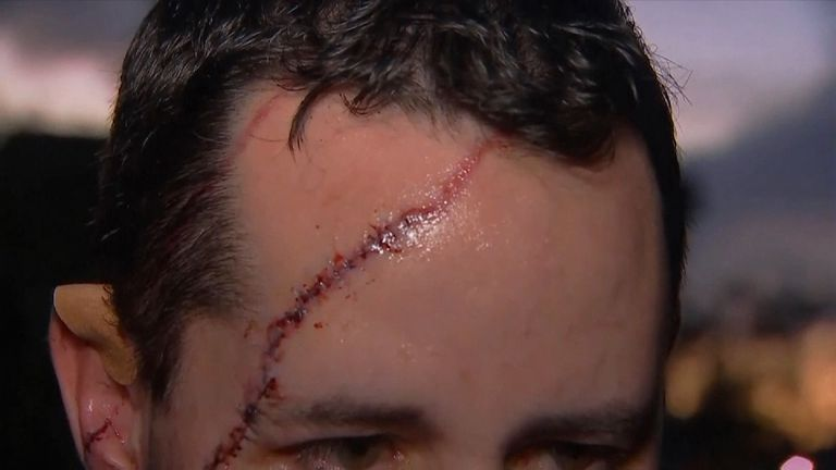 Andrew Meunier needed 41 stitches. Pic: Wink News