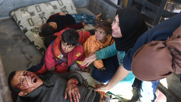 A family said to have been wounded in a Turkish airstrike on a village in the Afrin district