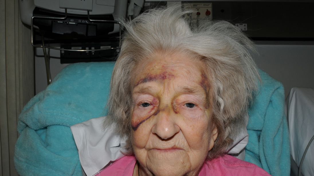 Eileen Blane spent two months in hospital but died the day after going home