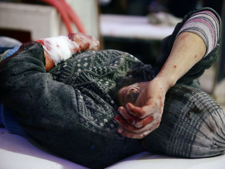 An injured man is seen at a medical point in the besieged town of Douma