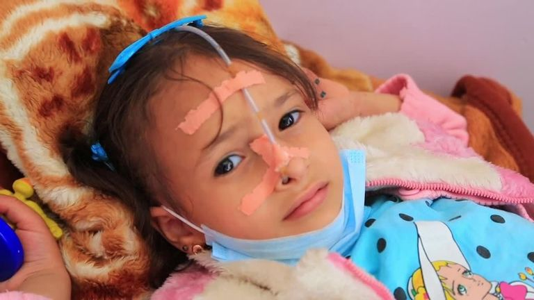 An injured girl in hospital in Yemen