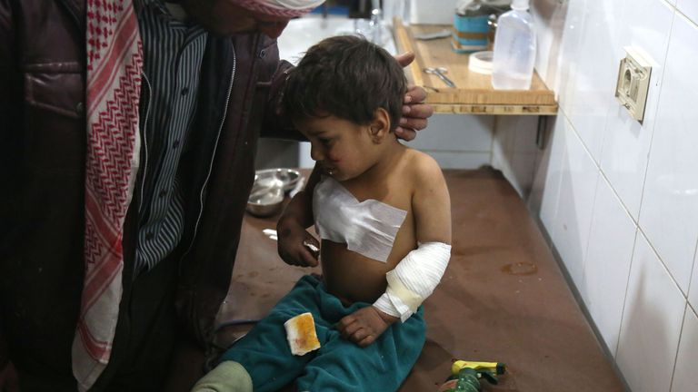 Syrian Mohammed cries as he receives treatment after being wounded with his mother in government air strikes on the outskirts of the capital Damascus