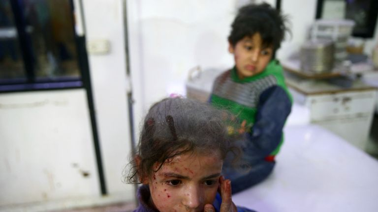 Wounded children are seen in a hospital in the besieged town of Douma, Eastern Ghouta, Damascus