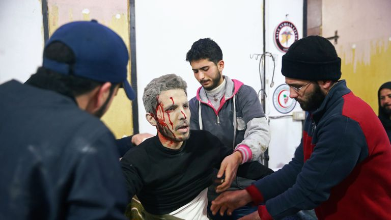 An injured man covered with blood is seen at a medical point in the besieged town of Douma,
