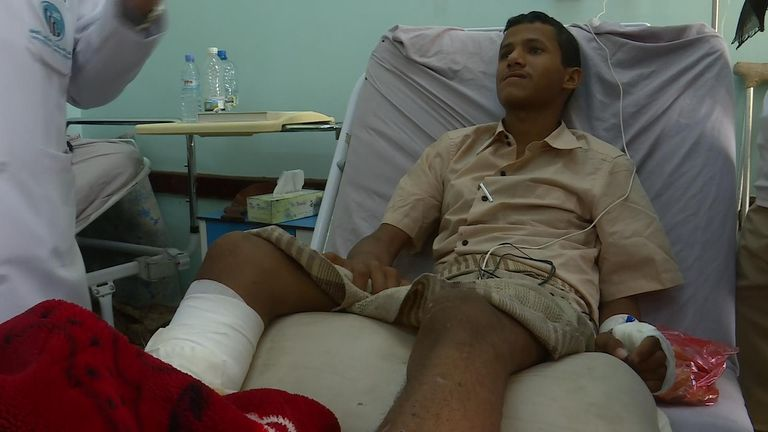 This 17-year-old boy lost his leg after joining up to fight in his school holidays
