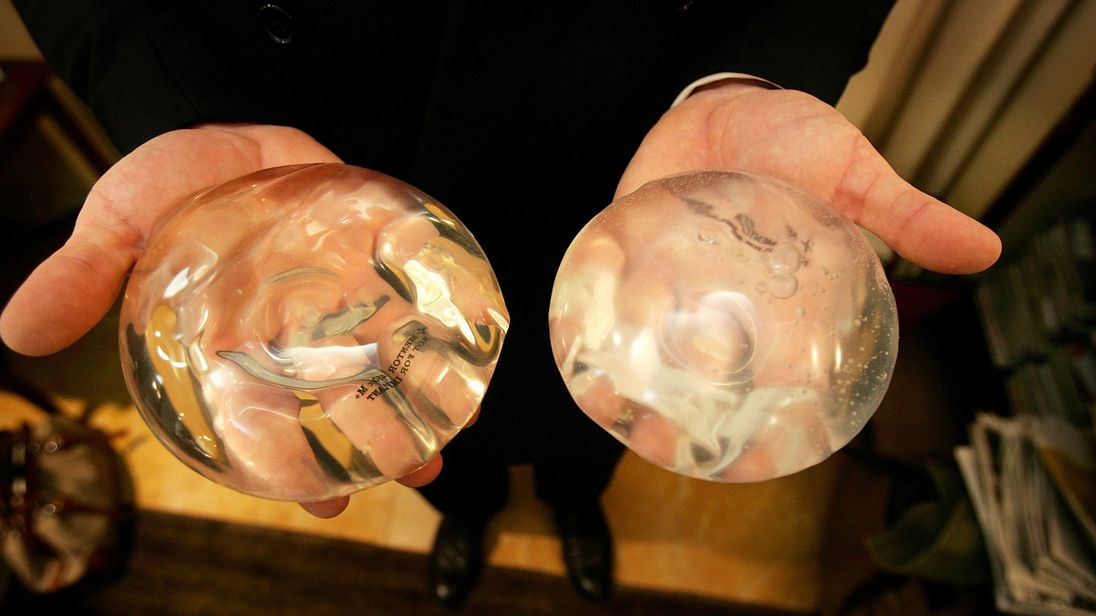 Thousands of women have had breast implants