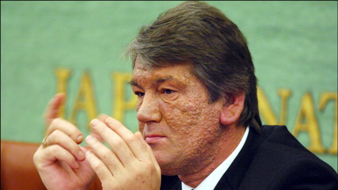 Viktor Yuschenko's face was covered in skin growths after he was poisoned in 2004