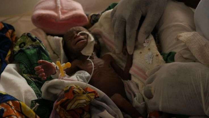 The baby is one of the Democratic Republic of Congo's 'internally displaced'