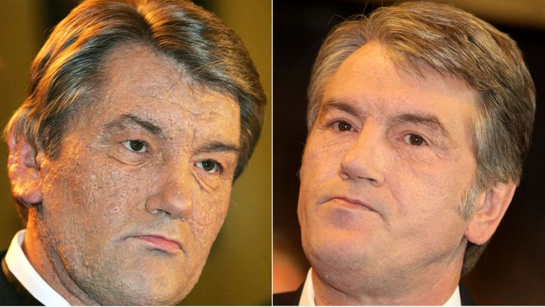 Former Ukranian President, Victor Yushchenko pictured in 2005, soon after his poisoning (L) and in 2015 (R)