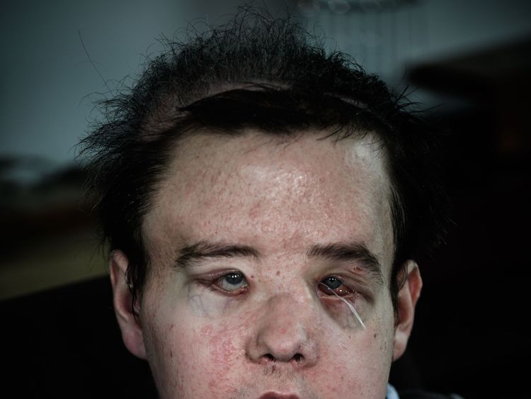 Jerome Hamon, the first man in the world to twice undergo a face transplant