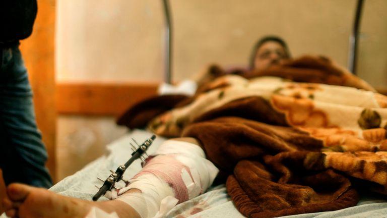 A Palestinian man wounded at the Israel-Gaza border is treated at the Shifa Hospital