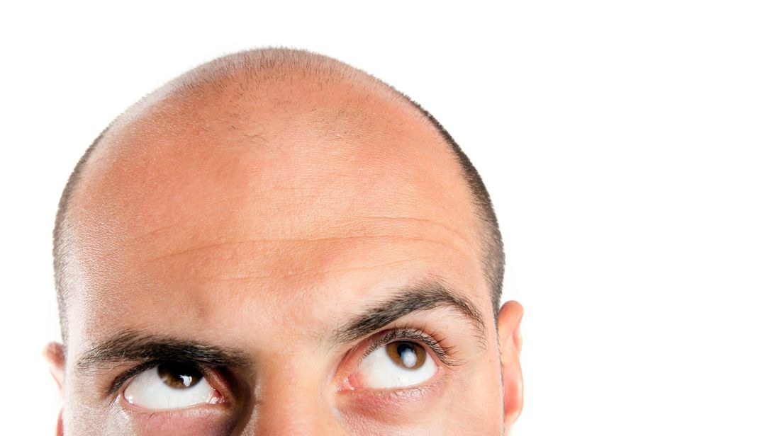 Side Effect From Osteoporosis Drug Uncovers 'cure' For Baldness Stunning Male Pattern Baldness Cure Discovered