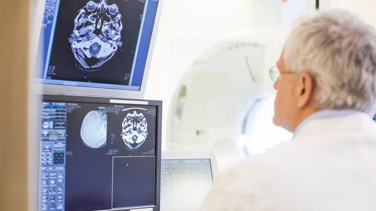 Rear view of doctor examining CAT scan reports - Stock image