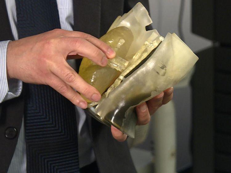 3D printing helping surgeons practise transplants
