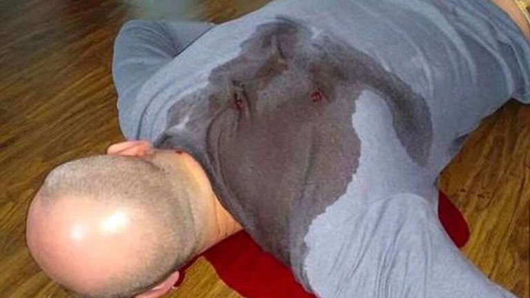 The image of Arkady Babchencko faked death, using pig's blood