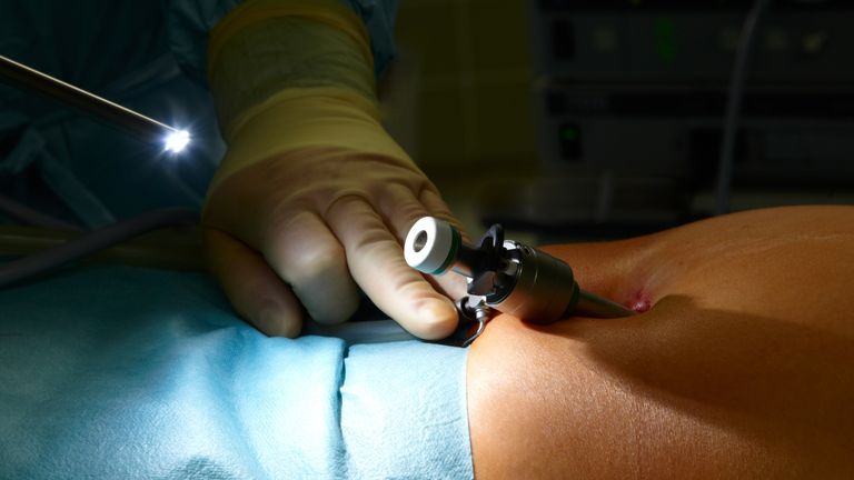 Keyhole surgery is now a common NHS procedure