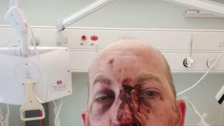 Simon Moss in hospital after falling off his bike when he hit a pothole near Stony Stratford, Bucks