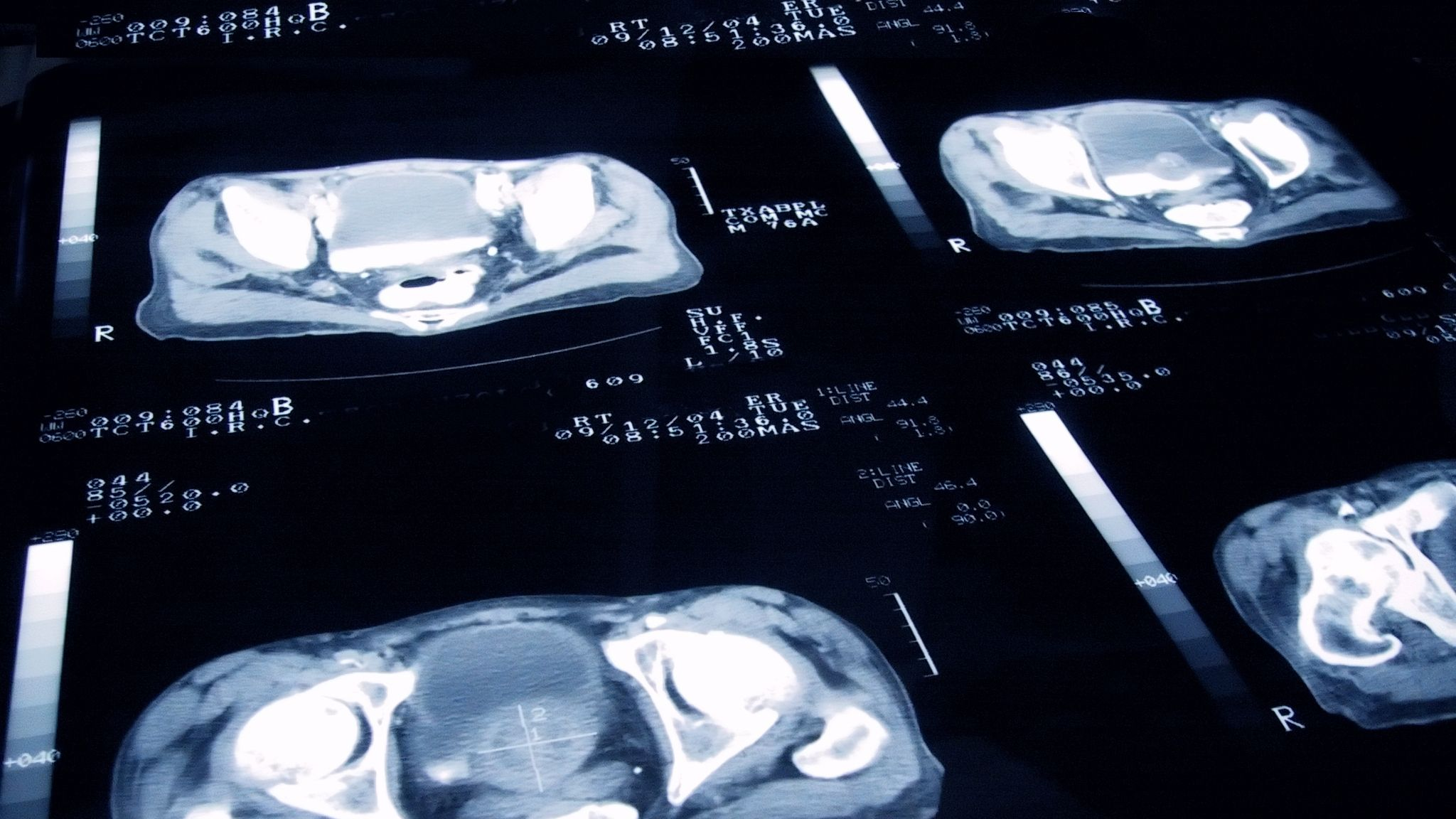 immunotherapy for prostate cancer nhs