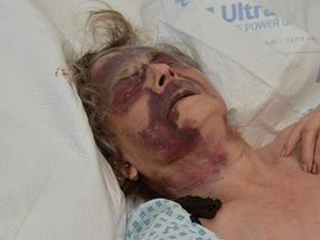 The 90-year-old remains in a serious condition in hospital. Pic: Met Police