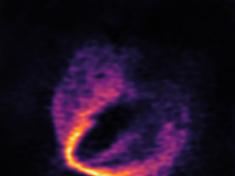 ALMA has uncovered convincing evidence that three young planets are in orbit around the infant star HD 163296. Using a novel planet-finding technique, astronomers have identified three discrete disturbances in the young star's gas-filled disc: the strongest evidence yet that newly formed planets are in orbit there. These are considered the first planets discovered with ALMA.This image shows part of the ALMA data set at one wavelength and reveals a clear 'kink' in the material, which indicates un