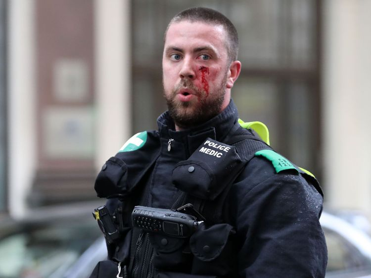 A police medic sports a facial injury after protesters scuffle with police at the junction during a gathering by supporters of far-right spokesman Tommy Robinson in central London on June 9, 2018, following the jailing of Tommy Robinson for contempt of court. (Photo by Daniel LEAL-OLIVAS / AFP) (Photo credit should read DANIEL LEAL-OLIVAS/AFP/Getty Images)