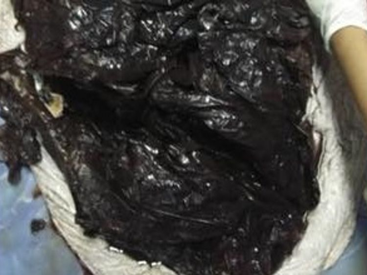Autopsy reveals dead pilot whale had 80 plastic bags in its stomach