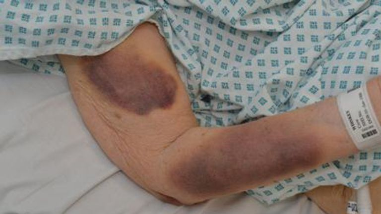 She was also left with bruising on her arms and legs. Pic: Met Police