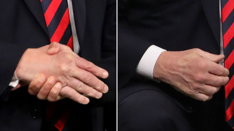 Macron left his mark on Trump's hand after a firm handshake