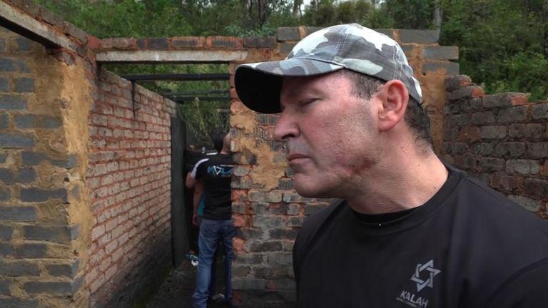 Farmer Chris Herbst shows off a gun wound