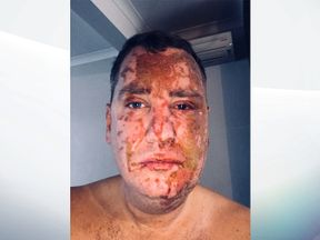 A man disfigured by an unprovoked acid attack has made a fresh appeal to find the man responsible almost six months after the assault. http://news.met.police.uk/images/red-bmw-1-series-the-suspect-left-the-scene-in-1366538