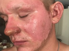 The 17-year-old spent two days in an unlit hospital room. Pic: GoFundMe/Alex Childress