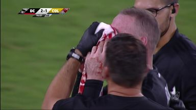 Rooney bloodied in last-gasp DC United win