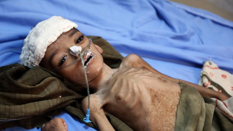 A malnourished Yemeni child awaits treatment at a hospital in the Yemeni port city of Hodeidah, on May 7, 2018