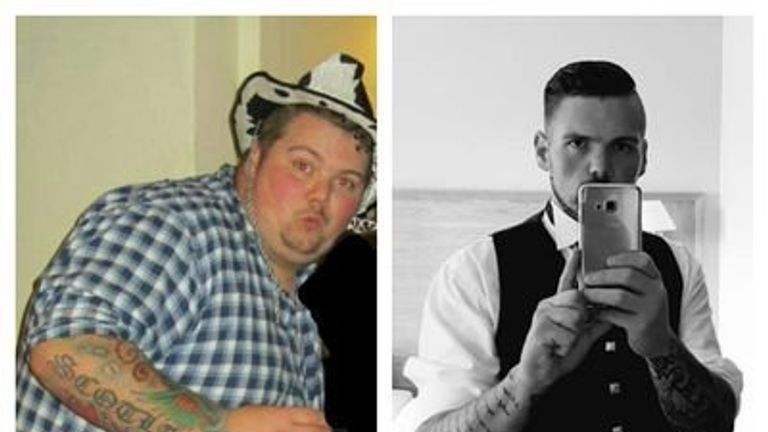 #myNHSstory #obesity #obsmuk #NHS70 #skynews I had a gastric bypass through the NHS and it has saved my life, the staff where amazing from my gp, dietician, the surgeon and the staff on the ward. I've gone from 30st to 14st and quality of life is amazing now. Thank you #NHS