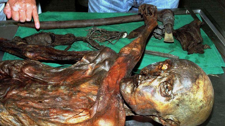 Oetzi is the world's oldest mummy
