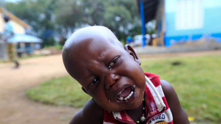 A refugee child from South Sudan cries while waiting for medication at a healthcare centre at Palorinya settlement camp in Moyo district northern Uganda October 26, 2017. Picture taken October 26, 2017. REUTERS/James Akena