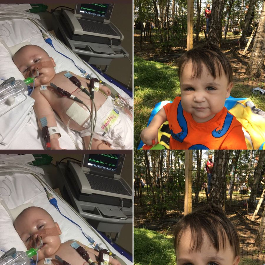 Without our NHS Ethan would have died because of chronic lung disease, pneumonia, heart failure, renal failure. Instead he just had a new kidney from an altruistic donor and will live a full and normal life. #NHS70 @GreatOrmondSt #myNHSstory