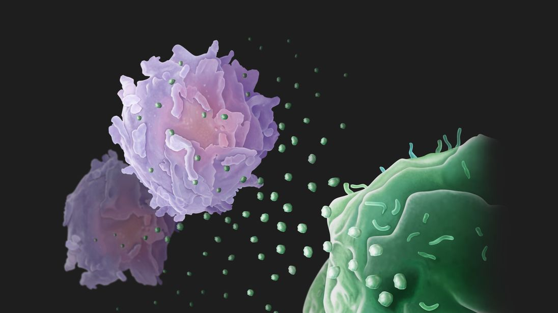 Secretion of exosomes by tumor cells (lower right) to fight the T cells (upper left). Credit: The labs of Wei Guo, PhD, and Xiaowei Xu, MD, PhD, University of Pennsylvania.