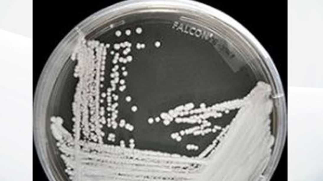 The fungus was discovered in 2009